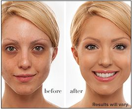 Before and after photos of an IT makeup user.