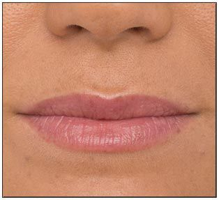After Photos using Vitality Lip Flush